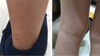 8歲妹肚子超痛!小腿到屁股狂長「詭異紫斑」 醫警告:嚴重恐腎衰竭