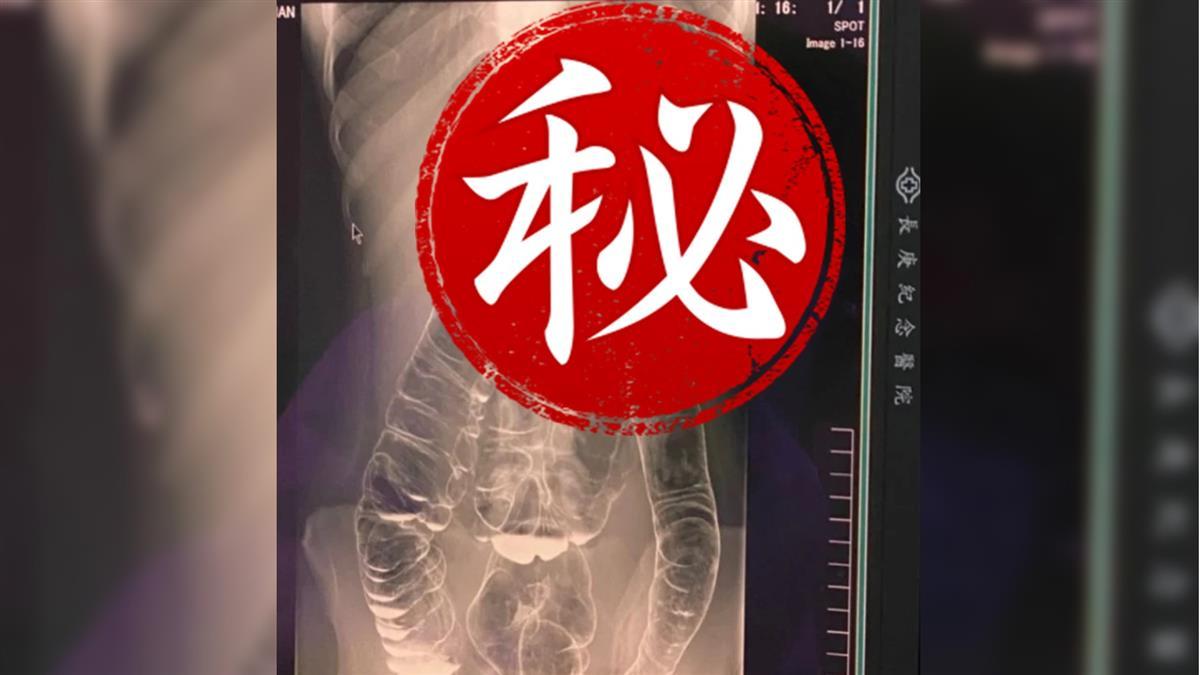 23歲女便秘17天腹脹3倍 恐怖X光照嚇壞網:大腸長到心臟