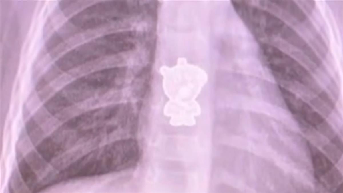 1歲女童狂哭咳出血 醫看CT嚇壞…是「佩佩豬」惹禍