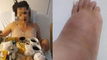 21歲妹做豐臀「矽膠流湯」腫成象腿 10年後全壞死:要截肢了