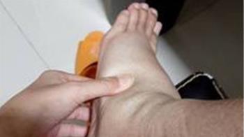 紅斑性狼瘡引肥胖 女大生急性腎衰竭險送命