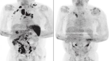 6旬翁確診新冠後腫瘤消失 免疫學專家解答了
