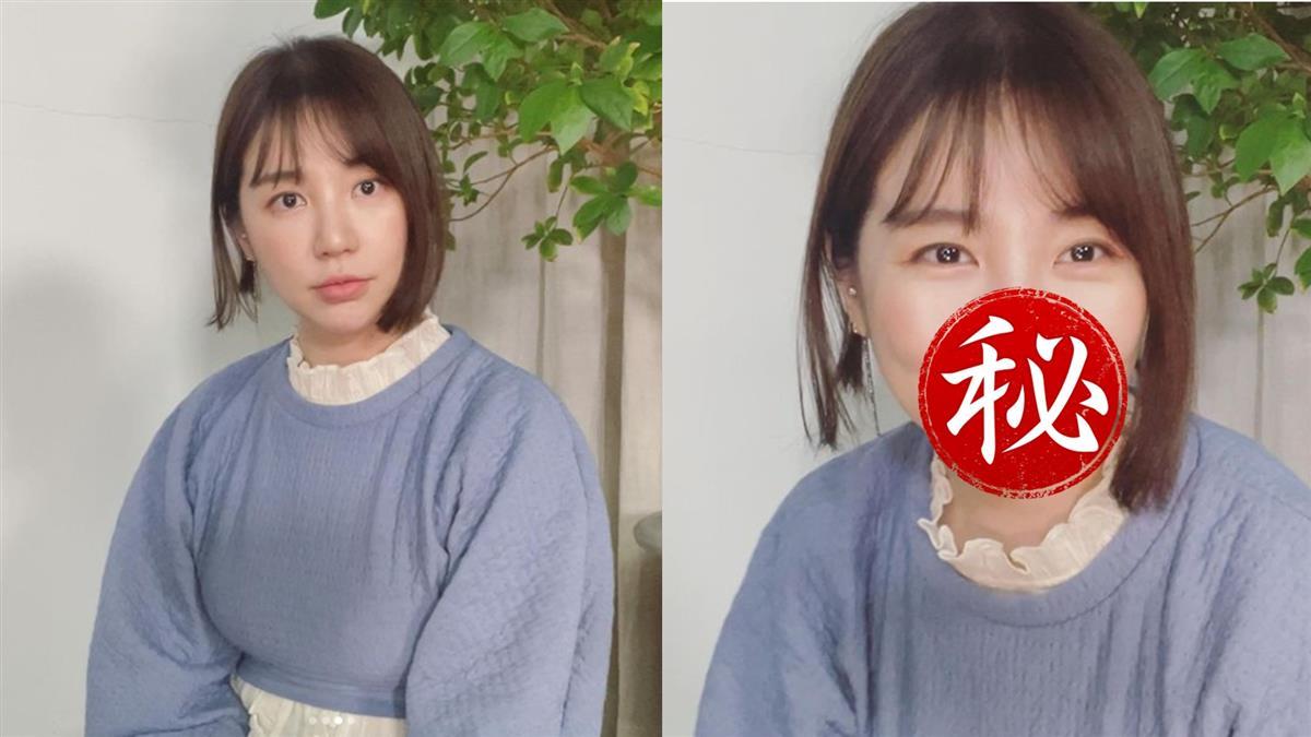 尹恩惠整型過頭臉毀了 「嘴像縫的」宛如小丑