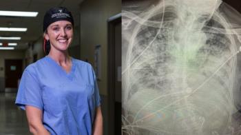 新冠患者肺部「佈滿白色纖維」 醫曝比重度煙癮者更慘