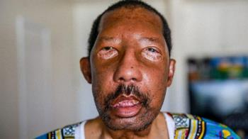 首例全臉移植非裔美國人 成功「換臉」重獲新生