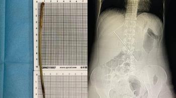 喝朋友給的礦泉水 她腹痛4天衝急診...體內驚見15cm鐵釘
