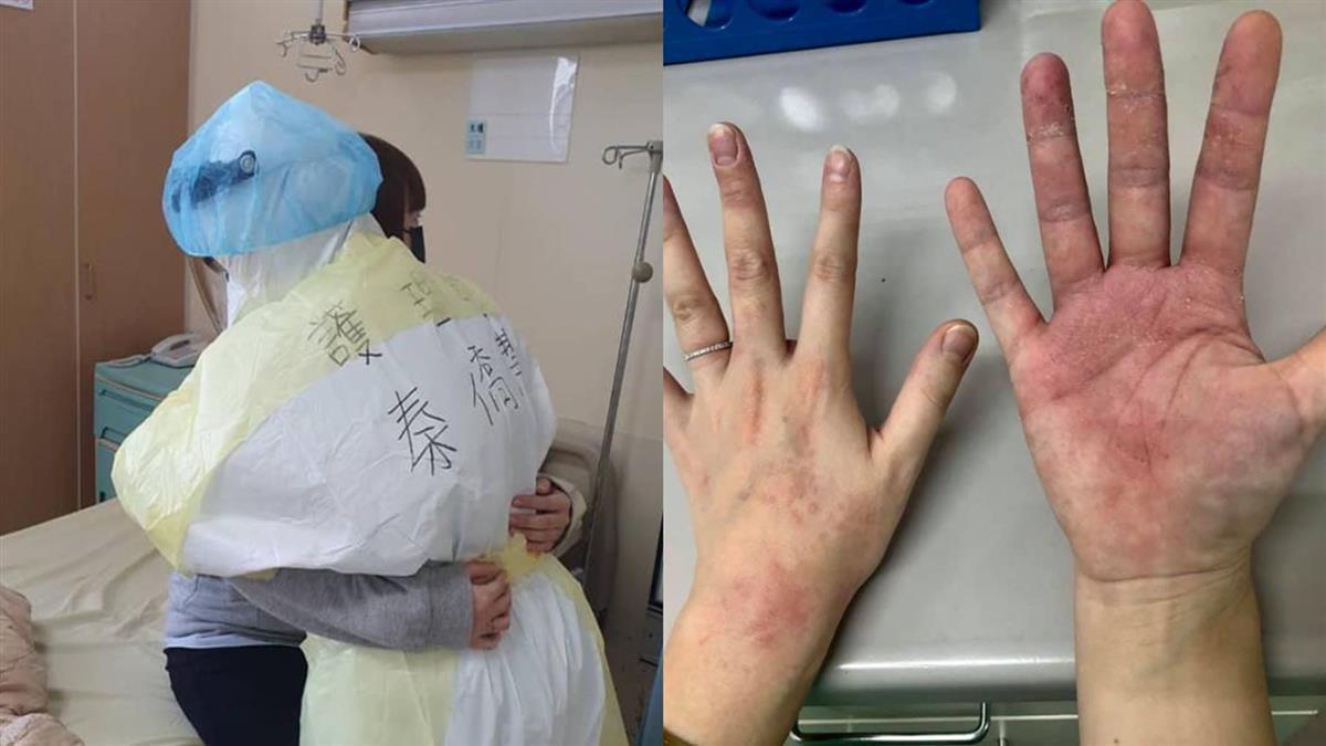 死守第一線!醫護雙手破皮起紅疹 護理長:沒人喊苦