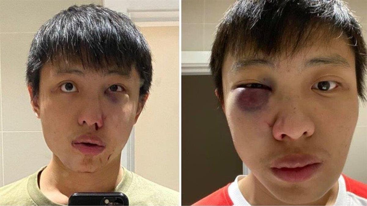 新加坡留學生在倫敦遭種族攻擊 施暴少年罪成