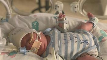 765克早產兒戰勝新冠、敗血症 媽咪淚:最勇敢的小鬥士!