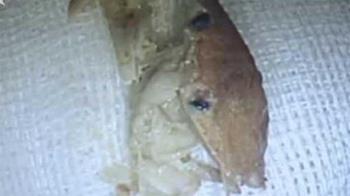 女吃麵一半喉嚨不舒服 醫檢查見「整隻螃蟹」卡食道