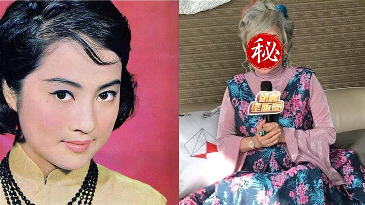 花200元做廉價整形 性感女星跌倒「半張臉撕開」慘毀容
