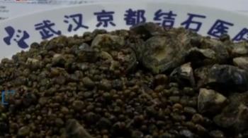 解密肝膽排石營課程 業者6個月狂撈200萬