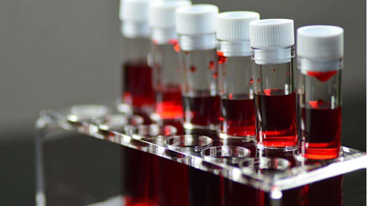 全球僅43人!罕見血型「黃金血液」 1生只能輸血1次