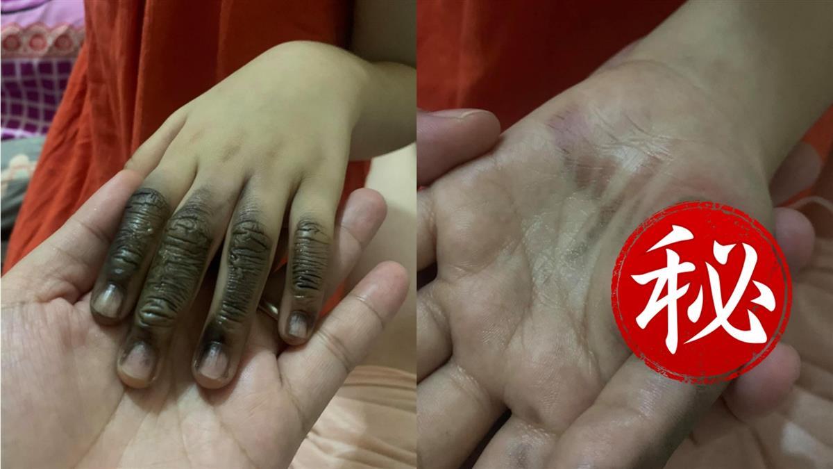 插延長線突爆炸!7歲妹指頭燒焦黑掉...手掌冒超大水泡