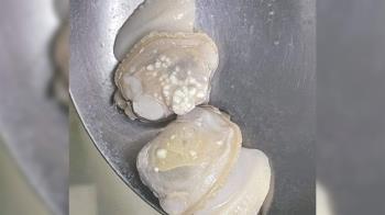 她煮熟蛤蜊驚見白色疹子 內行人神解答生成原因