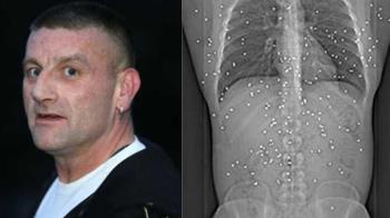 衰男遭掃射「150粒子彈」卡體內 15年動20次手術崩潰