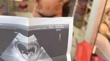 罔腰承認未懷孕「超音波是假的」 衛生局怒了