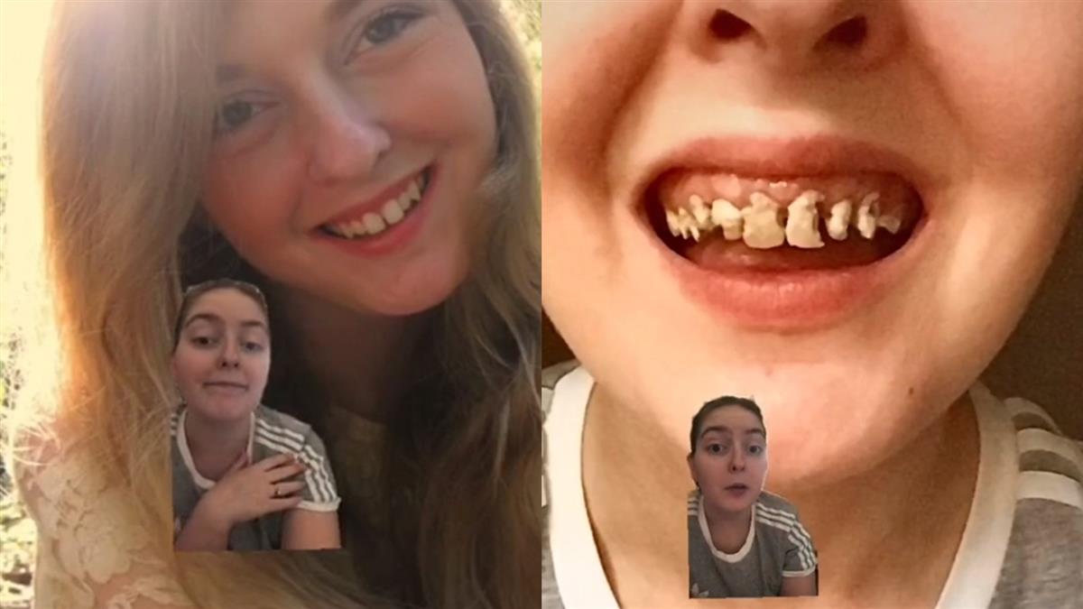20歲嫩妹狂喝汽水「牙齒全爛光」 不愛刷牙下場慘急拍片勸世
