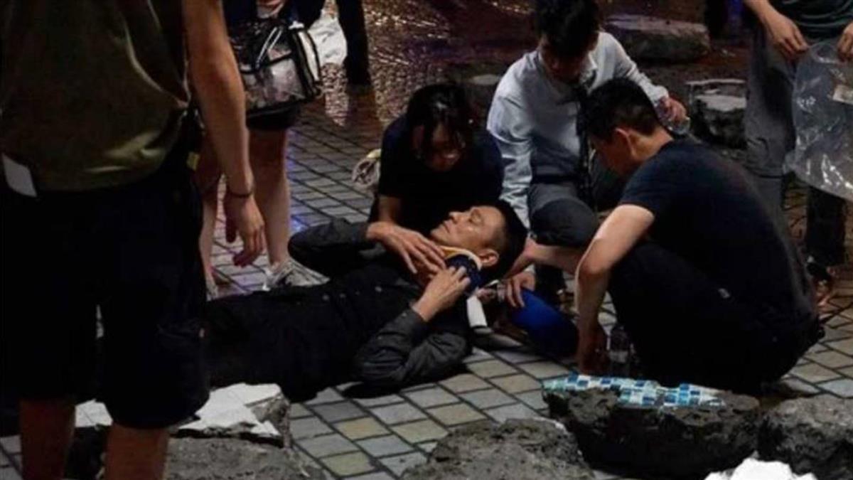 劉德華驚傳拍片意外「血流如注」 工作人員急忙止血
