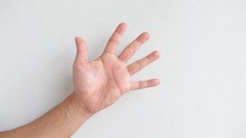 手腳掌有黑痣是癌症?醫:5徵兆注意黑色素瘤