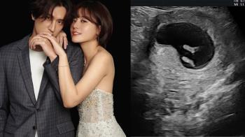 小蠻挺5月孕肚「吐血」被送急診 邵翔目睹過程嚇壞了