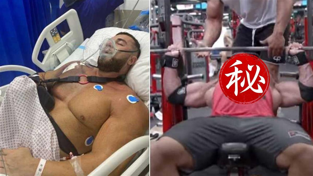 猛男臥推220kg「胸肌詭異隆起斷裂」 緊急送醫搶救