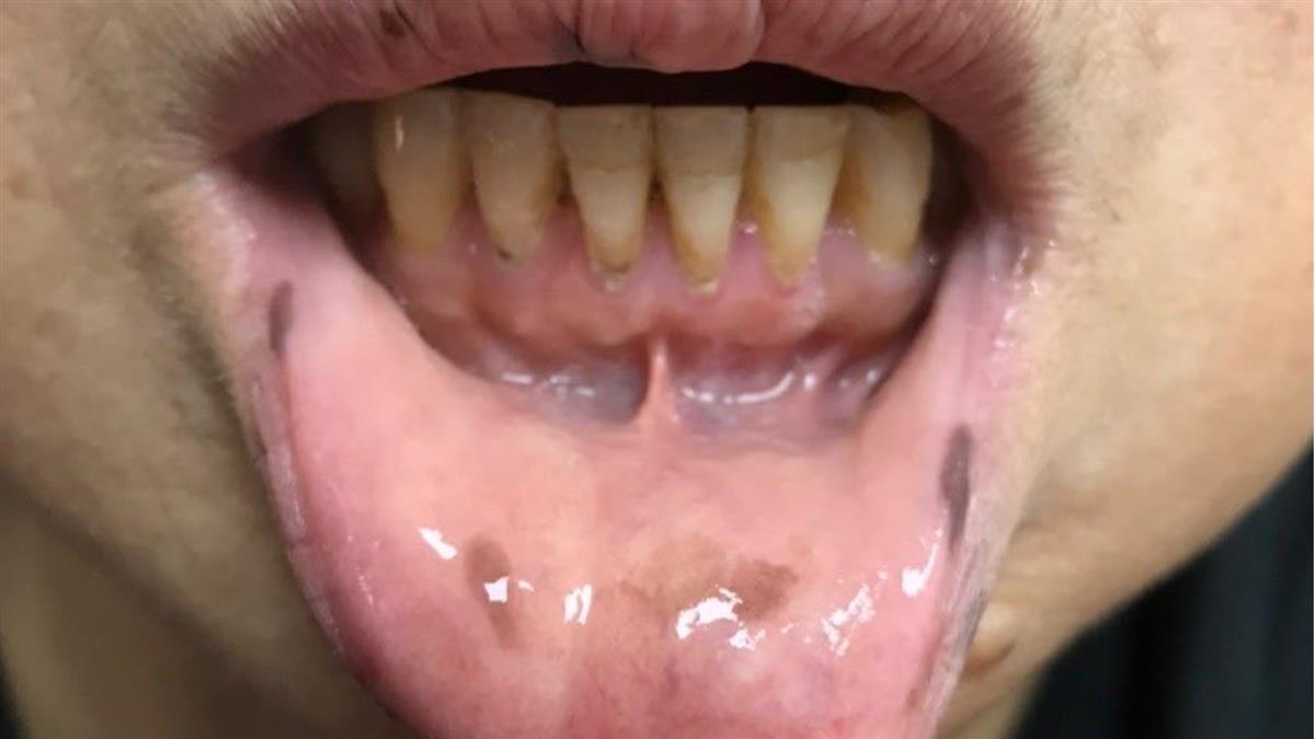 婦手指、嘴內突冒30顆黑斑 醫一看嘆:是大腸癌