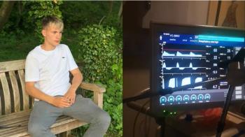 18歲少年腦死!器捐前「眨眼」復活 醫驚呆:全球唯2奇蹟