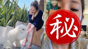 蕭亞軒遭愛犬咬傷首曝近照 嘴角超長傷疤超心疼