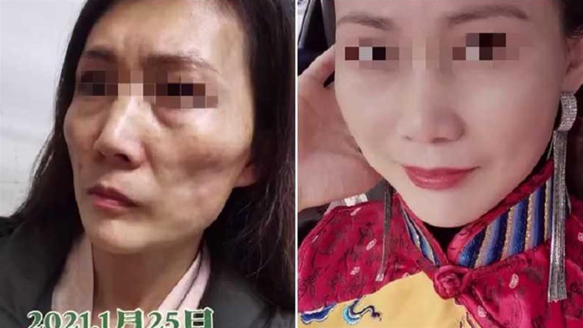 44歲美魔女整形慘成「女巫」 滿臉凹凸不平嚇跑丈夫