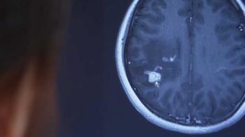 食物沒熟!20歲女突半身麻痺 醫一看嚇傻:腦子全寄生蟲