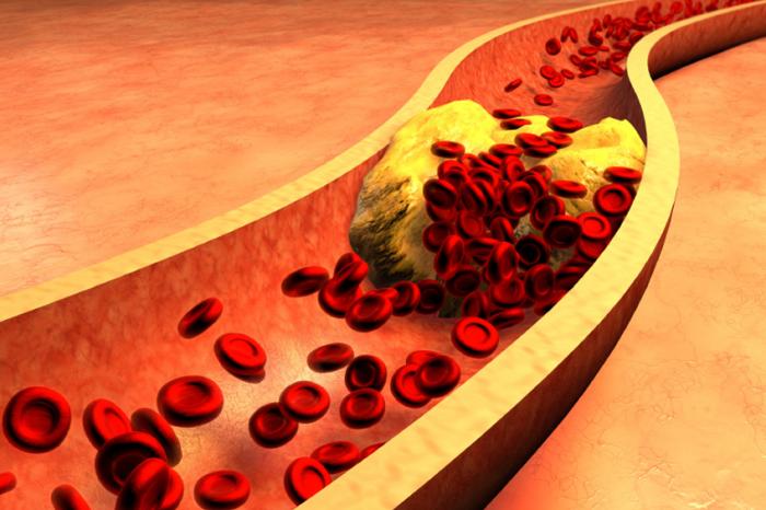 當飲食控制不佳、未定期定量運動,造成身體疾病產生時,血液中脂蛋白濃度過高時,脂蛋白(含膽固醇等)容易堆積在動脈血管壁內層,引起局部發炎反應。