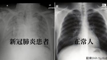 獨/確診者、正常人「肺部對比照曝光」 醫師嘆:重症像溺死一樣