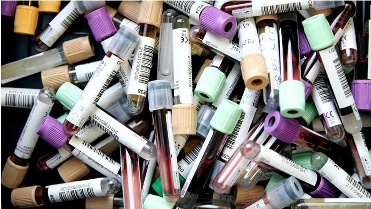 血型跟染疫風險有關?研究顯示這血型最容易感染