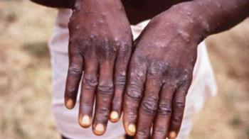 致死率10%!猴痘病毒入侵歐洲 英國傳出2人確診