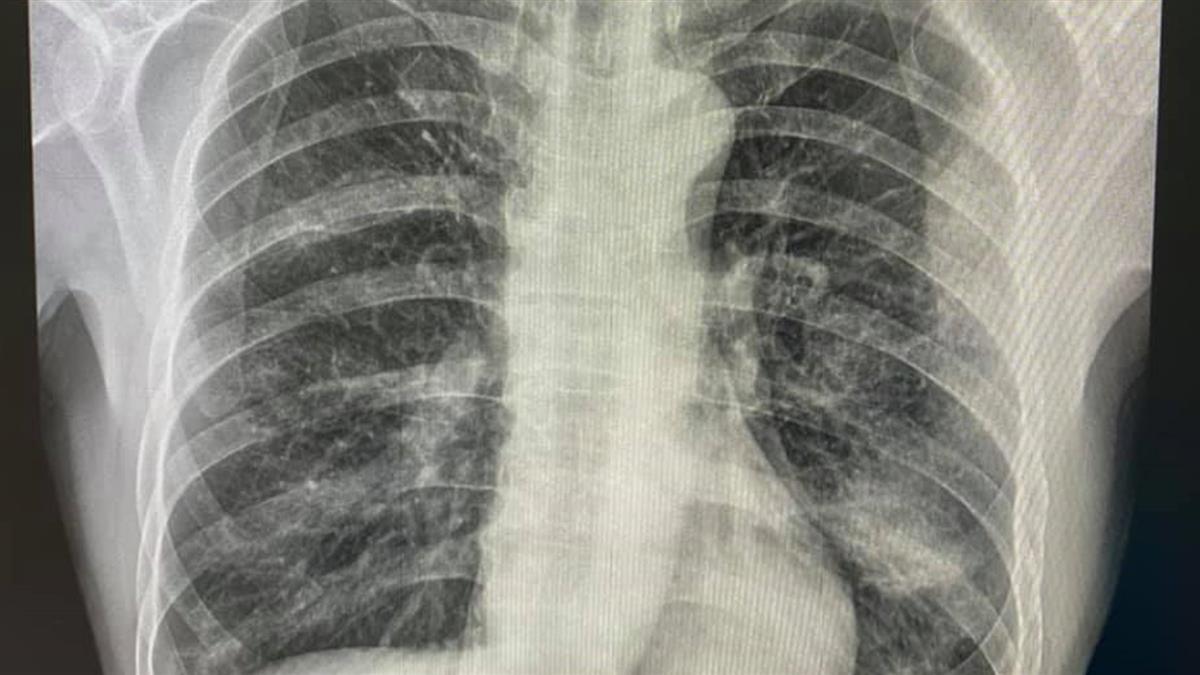 一家三口染疫「嬤過世、父住院、6歲童痛哭」 醫看新聞倒吸口氣