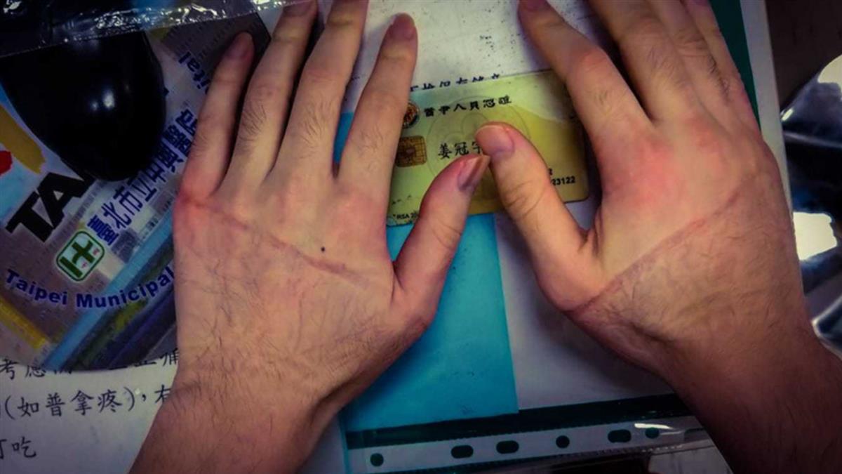 醫曬為98人施打疫苗「手麻照」 拇指差點動不了惹心疼