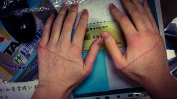一口氣打98劑疫苗 醫曬手背勒痕照:拇指麻掉不能動