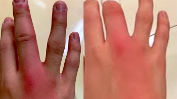 用手指服務女友!他崩潰染性病 整根紅腫痛爆