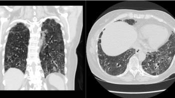 獨/蘇一峰貼肺部電腦斷層照 陽明院區染疫人員仍奮戰