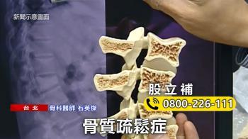 骨質疏鬆難察覺!醫:股立補含蛇床子可助存骨本