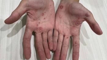 多人運動不忘防疫!花美男轉身換姿勢 手腳爆紅疹毀了