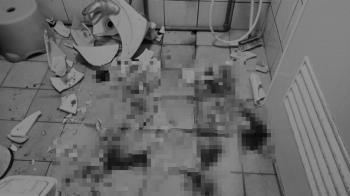 浴室洗手台突爆裂!10歲女童遭割傷「血流滿地」