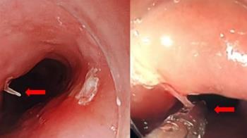 老婦喉嚨卡魚刺 竟胸骨後疼痛!醫:情況非常危急
