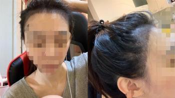 妹子花1萬2做「髮際線紋繡」 成品曝光同事笑噴:像清朝人