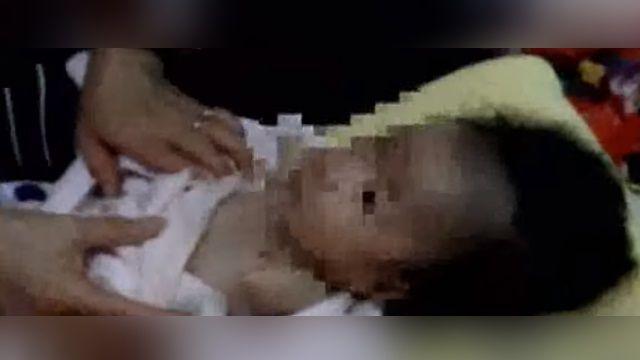 單腿女娃2歲了 跨出人生的「第一步」