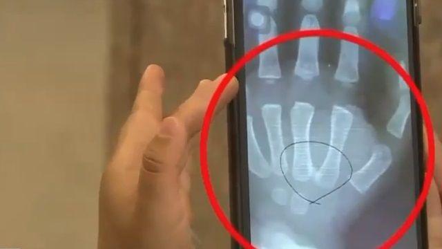 醫生未看出異物 1歲娃玻璃竟插手1個月