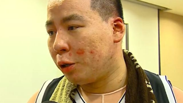 八仙塵爆半年 三總65傷患戰勝燒燙傷痛
