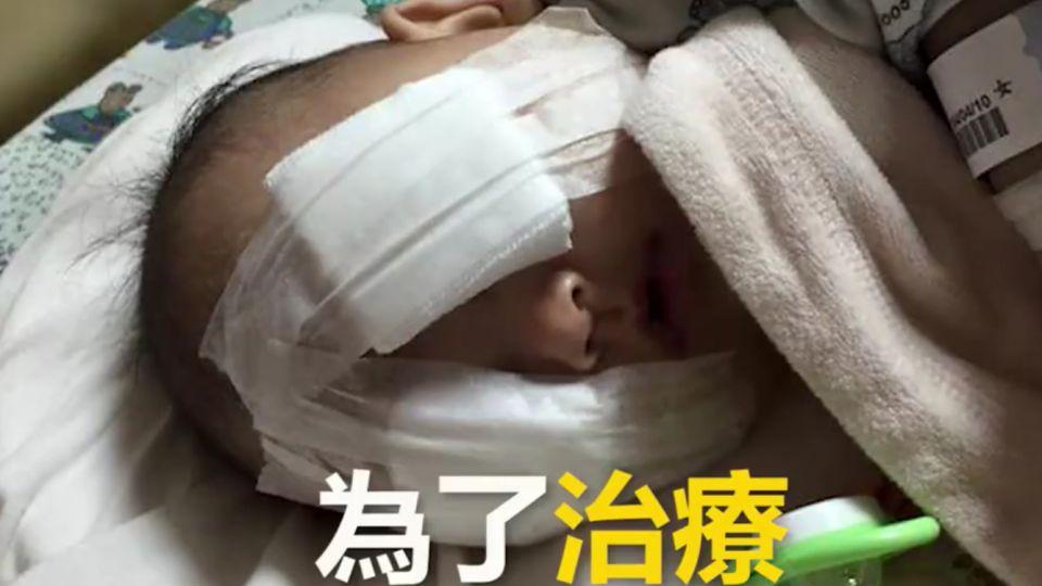 一起集氣!女嬰罹癌除雙眼 雙親籌藥費