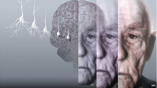 驚!研究:器官移植 恐染阿茲海默症